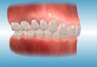 Orthodontics Incisor Overbite